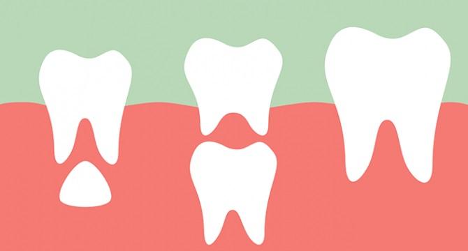 etapas en los dientes