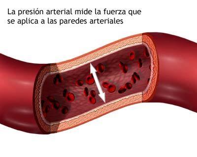 La presión arterial alta causará debilidad