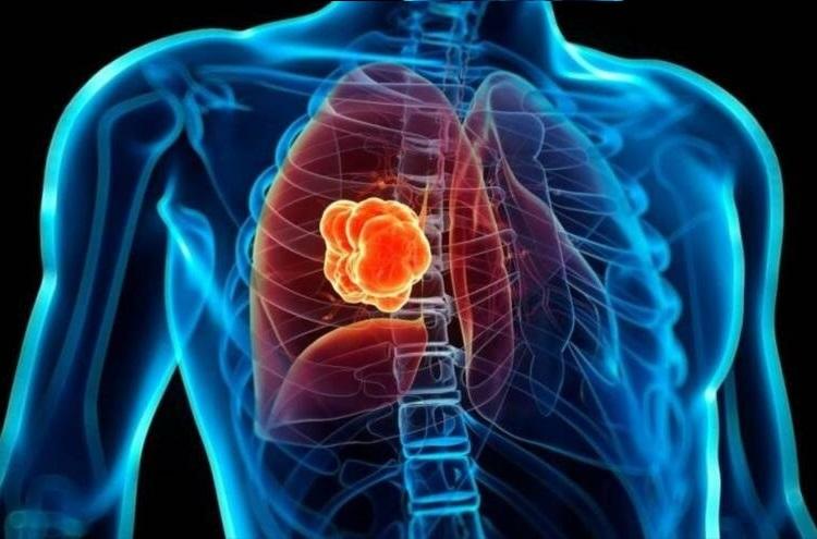 El cáncer de pulmon se produce por culpa del tabaco en el 85% de las ocasiones