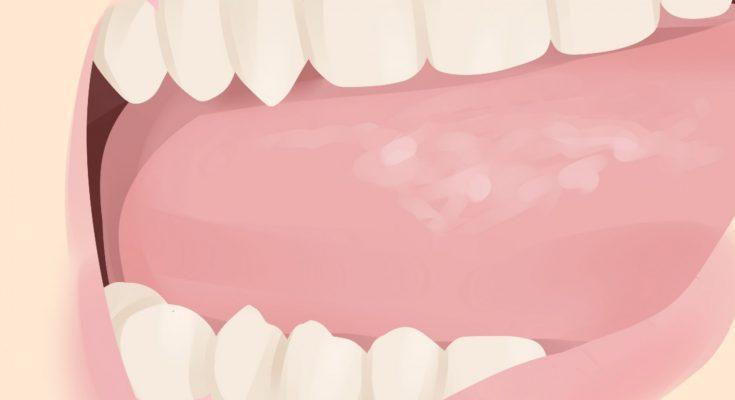 Descubre la causa de 9 de cada 10 canceres orales